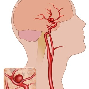 brain%20aneurysm%20on%20human%20head-300?v=1