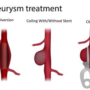 newaneurysm%20treatment%20options%201-300?v=1