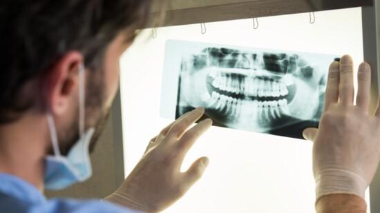 The Widsom About Wisdom Teeth